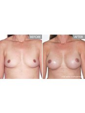 Breast Augmentation - Dr James Southwell-Keely - Woollahra Clinic
