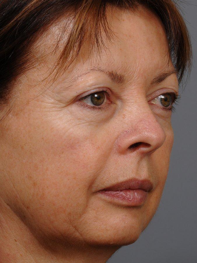 melbourne facial plastic surgery jpg 1500x1000