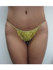 Liposuction - Absolute Cosmetic Medicine Kalgoorlie