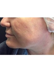 Mini Facelift - Absolute Cosmetic Medicine Kalgoorlie