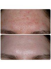 Acne Scars Treatment - Medaesthetics Australia
