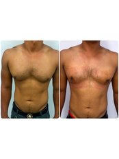 Gynaecomastia Surgery (Male Breast Gland), Before and 1 day after surgery - Medaesthetics Australia