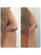 Gynecomastia Surgery- Dr Ehsan Jadoon - Medaesthetics Australia