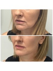 Lower Face Thread Lift - Medaesthetics Australia