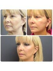 Face & Neck Lift- Dr Ehsan Jadoon - Medaesthetics Australia