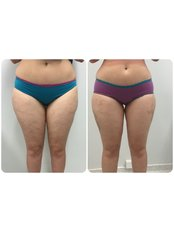 3D Liposuction- Outer & Inner Thighs. Dr Ehsan Jadoon - Medaesthetics Australia