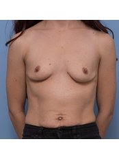 Breast Augmentation - Sam Cunneen Plastic Surgery