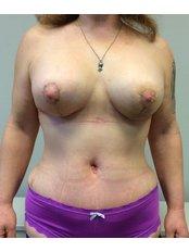 Brustverkleinerung - Body Feminization - Dr. Maarten Doornaert