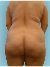 Po-Implantate / Hüftimplantate (NEU!) - Body Feminization - Dr. Maarten Doornaert