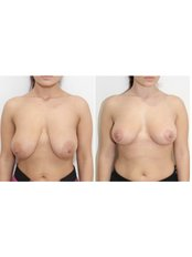 Breast Lift - VIVO CLINICS