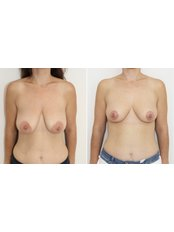 Breast Implants - VIVO CLINICS