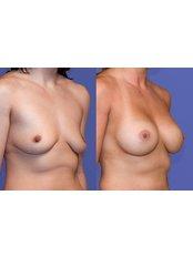 Breast augmentation - Wellness Kliniek Belgium