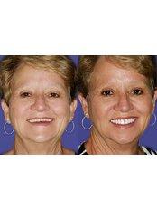 Dental Implants - Wellness Kliniek Belgium