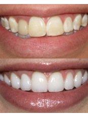 Dental Crowns - Wellness Kliniek Belgium