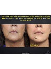 Eigenfetttransplantation (Lipofilling) - Coupure Centrum für Medizinische Kosmetik