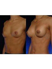 Brustimplantate - Coupure Centrum für Medizinische Kosmetik