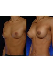 Breast Implants - Coupure Centrum Aesthetic Medical Center