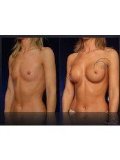 Brustimplantate - Coupure Centrum für Plastische Chirurgie