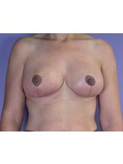 Areola Reduction - QC Medical Centre