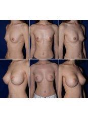 Breast Implants - QC Medical Centre