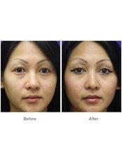 Eyelid surgery - QC Medical Centre