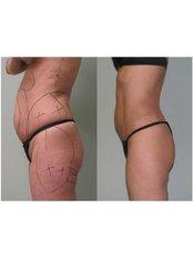Liposuction - QC Medical Centre