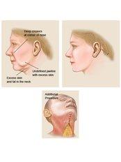 Facelift - Clinica de Cirurgia Plástica Dra.Adivânia Pinheiro