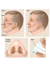 Open Rhinoplasty - Clinica de Cirurgia Plástica Dra.Adivânia Pinheiro