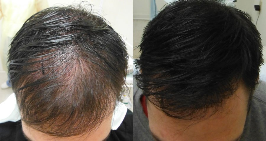 Scalp Micropigmentation Clinic Headpower Central