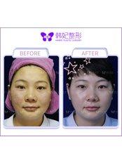 Facial Rejuvenation - Guangzhou Hanfei Medical Cosmetology