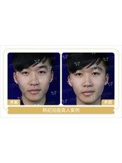 Acne Scars Treatment - Guangzhou Hanfei Medical Cosmetology