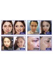 Facelift - Guangzhou Hanfei Medical Cosmetology