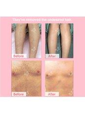 Laser Hair Removal - Guangzhou Hanfei Medical Cosmetology