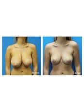 Breast Reduction - Guangzhou Hanfei Medical Cosmetology
