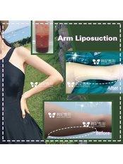 Arm Liposuction - Guangzhou Hanfei Medical Cosmetology