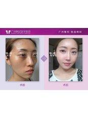 Fat Filler - Guangzhou Hanfei Medical Cosmetology