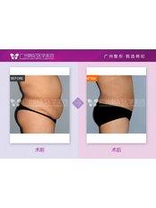 Lipoabdominoplasty - Guangzhou Hanfei Medical Cosmetology