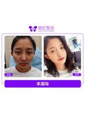 Facial Fat Transfer - Guangzhou Hanfei Medical Cosmetology