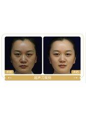 Ultherapy - Guangzhou Hanfei Medical Cosmetology