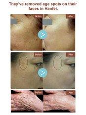 Age Spots Removal - Guangzhou Hanfei Medical Cosmetology