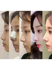 Rhinoplasty - Guangzhou Hanfei Medical Cosmetology