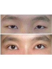 Double Eyelid Surgery - Guangzhou Hanfei Medical Cosmetology