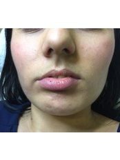 Lip augmentation with injectable fillers  - Poliklinika Mešter