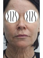 Facelift - Dr. Demetris Stavrou - European Institute of Plastic Surgery