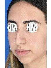 Chin Augmentation - Dr. Demetris Stavrou - European Institute of Plastic Surgery