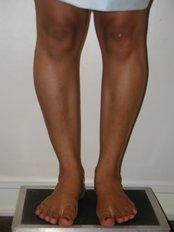 preop calf implants - CiruPlastic