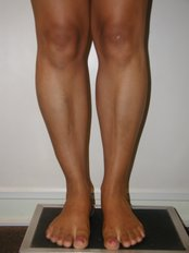 postop calf implants - CiruPlastic