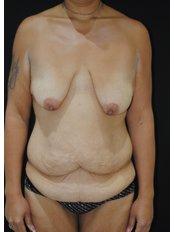Body Lift - Dr. Eduardo Mejia