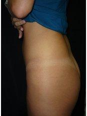 Butt Implants - Dr. Eduardo Mejia