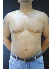 Gynecomastia - Dr. Eduardo Mejia